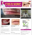 Cold Sore Niche Blog (PLR)
